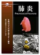 肺炎 Pneumococcal Pneumonia 13